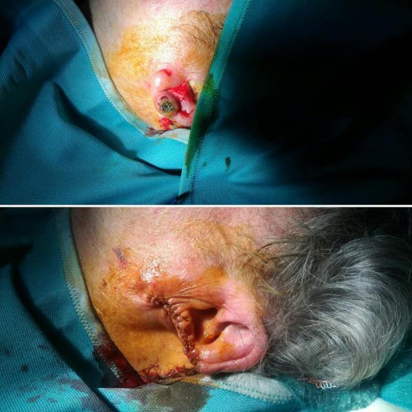 patologie orecchio cura messina reggio calabria