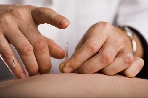 Agopuntura e Massaggi a Brescia