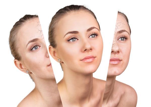 Microdermoabrasione Studio di Dermatologia Boccucci a San Martino al Tagliamento Pordenone