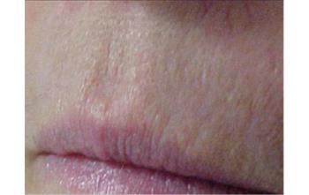 filler labbra brescia