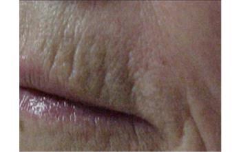 filler labbra bs