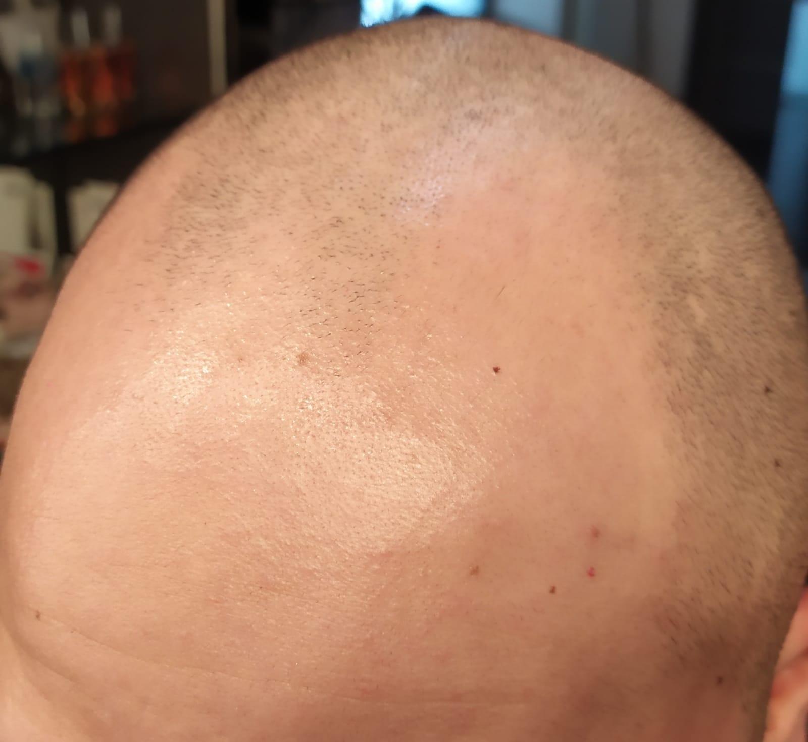 pigmentazione capelli