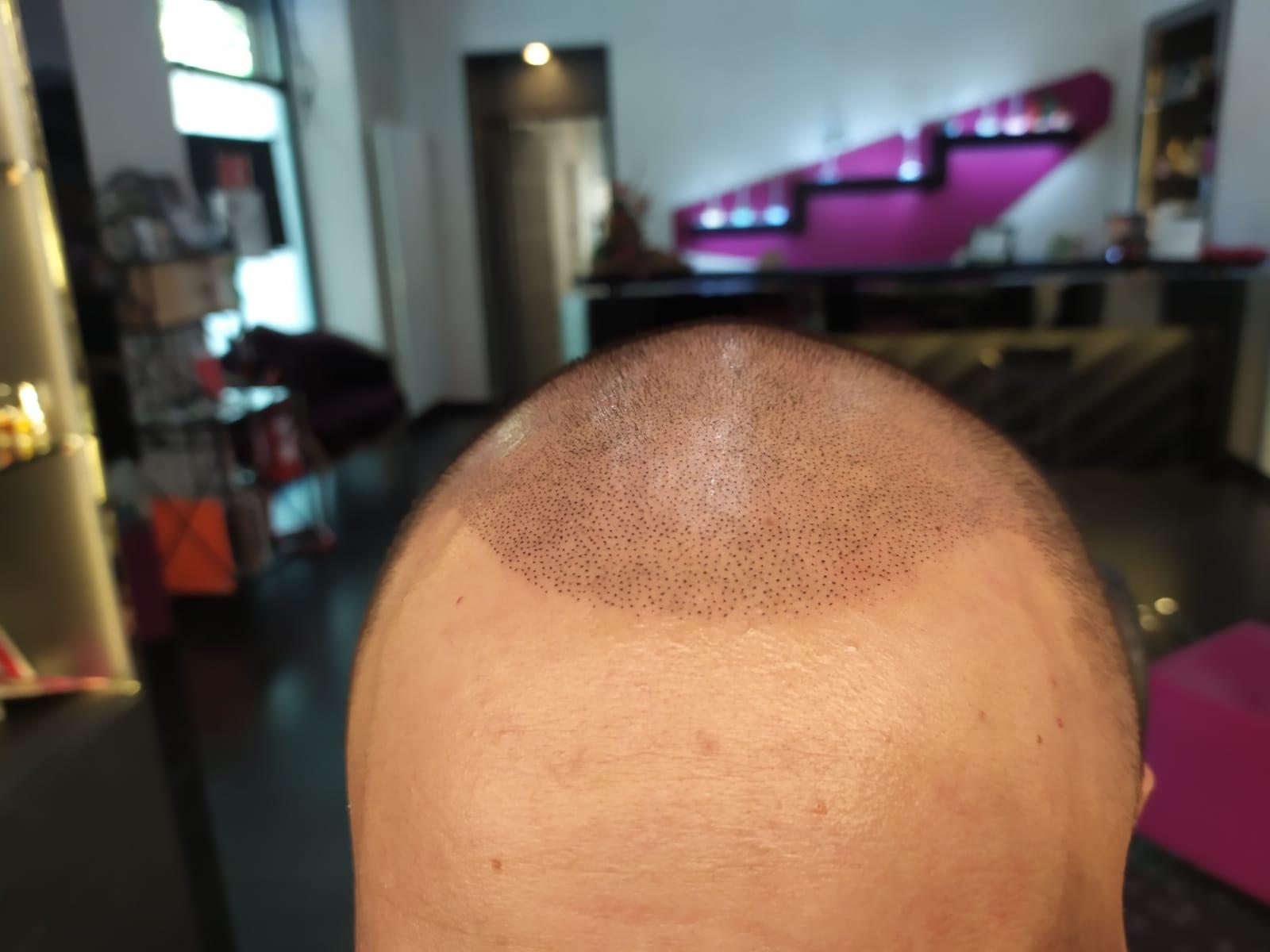 tricopigmentazione torino