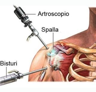 artroscopia spalla Firenze