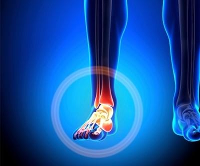 chirurgia caviglia Firenze