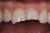 cura dente fratturato Terni