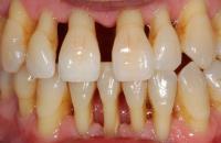 cura denti mobili Terni