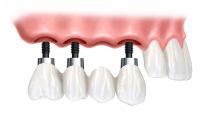 protesi dentali fisse Terni