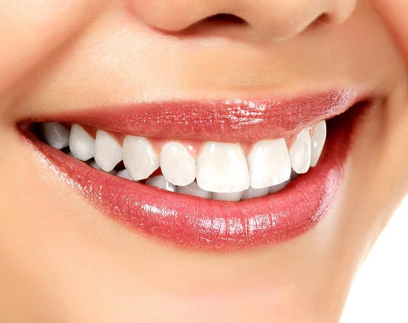 sbiancamento dentale Serino