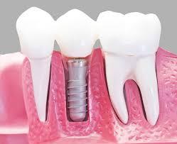 impianti dentali Bergamo
