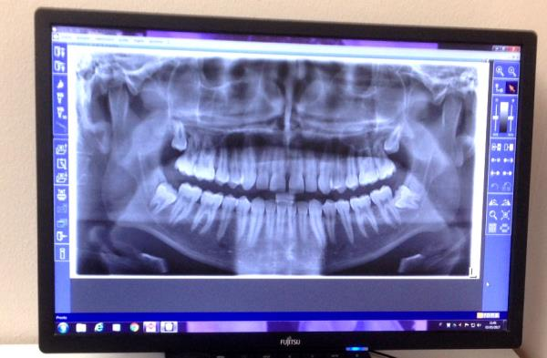 radiografia panoramica digitale Serino