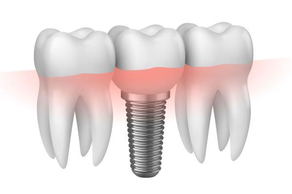 impianti dentali como