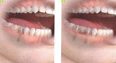 implantologia dentale Terni