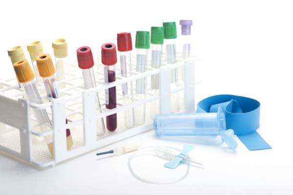 laboratorio analisi test droghe