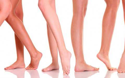 Varicose and Spider Veins in Taranto