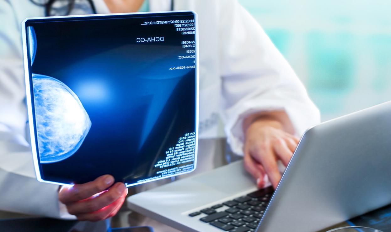 Mammografia Digitale a Cosenza