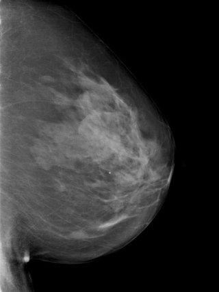 Mammografia a Cosenza