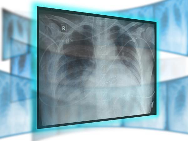 Radiologia, moc ed ecografia roma prati