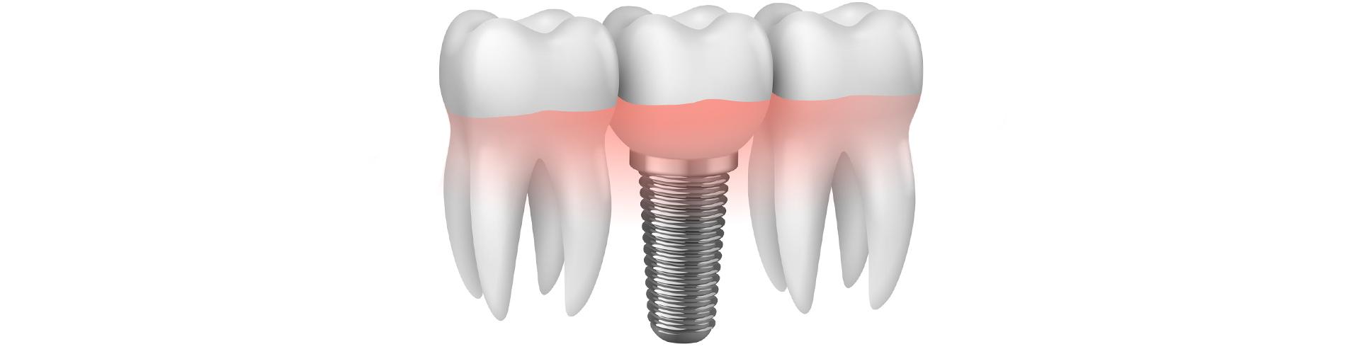 Implantologia Studio Dentistico Dott. R. Zanetti a Campodarsego Padova