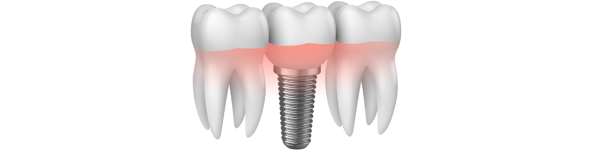 impianto denti campodarsego