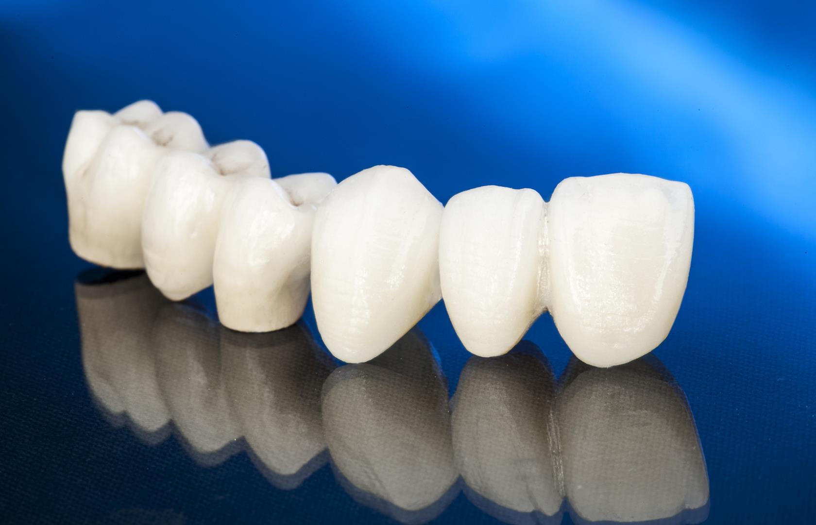 protesi dentali campodarsego