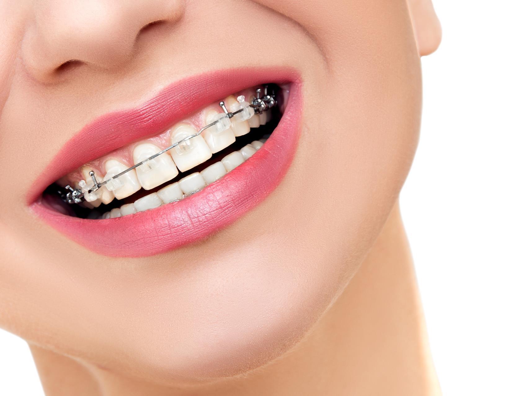 cura dei denti Piacenza (PC)