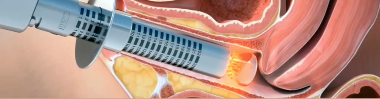 terapia secchezza vaginale ascoli piceno
