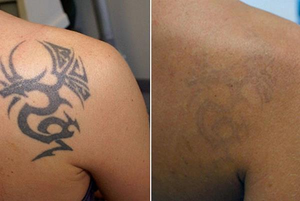 cancellare i tatuaggi laser bagheria