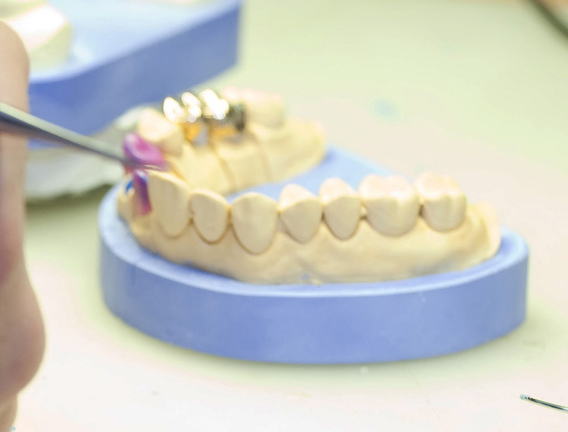 protesi dentaria in zirconio Bibbiena