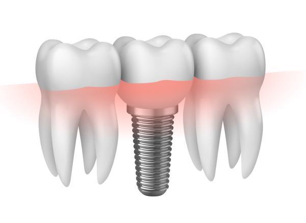 implantologia dentale Trieste