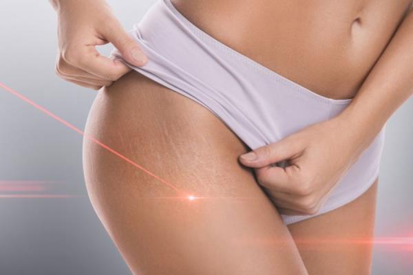 laser terapia risultati rapidi e indolori