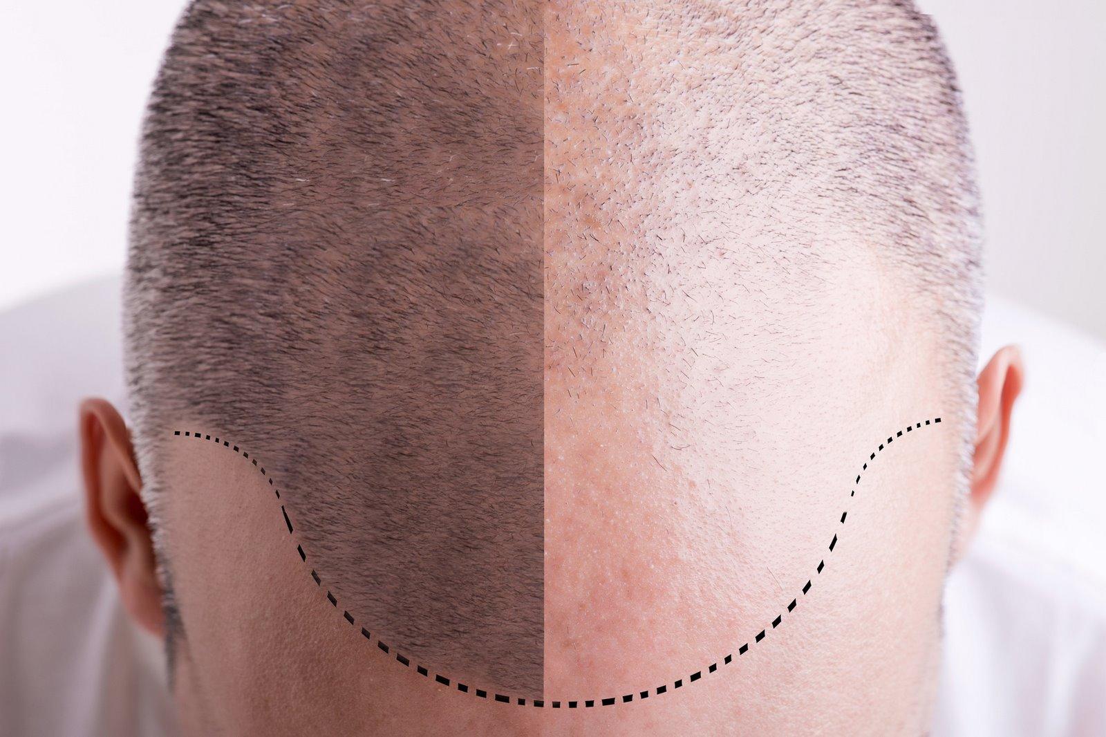 tricopigmentazione Pomezia