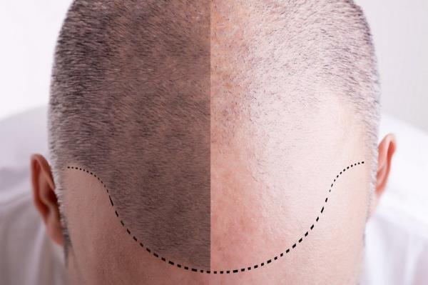 tricopigmentazione per calvizie Pomezia