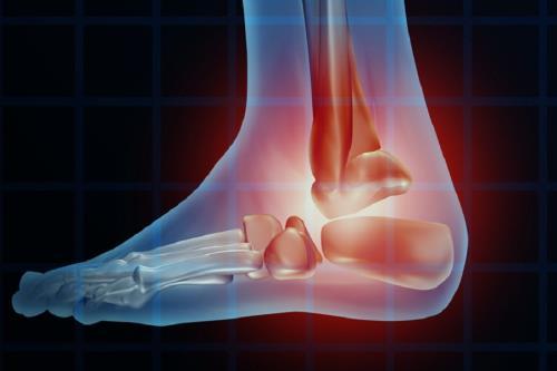 esame computerizzata del passo ortopedia rubbini