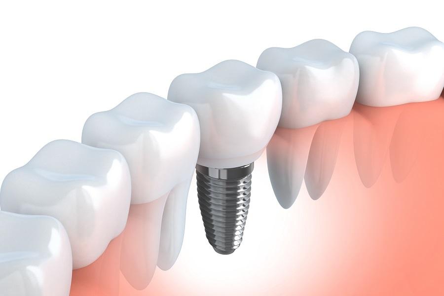 implantologia la spezia.jpg