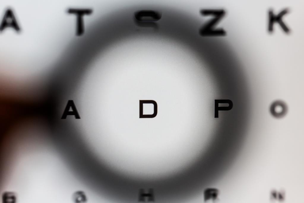 ipovisione specialisti ottica
