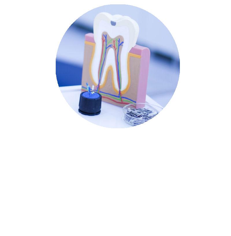 sostituire la radice del dente