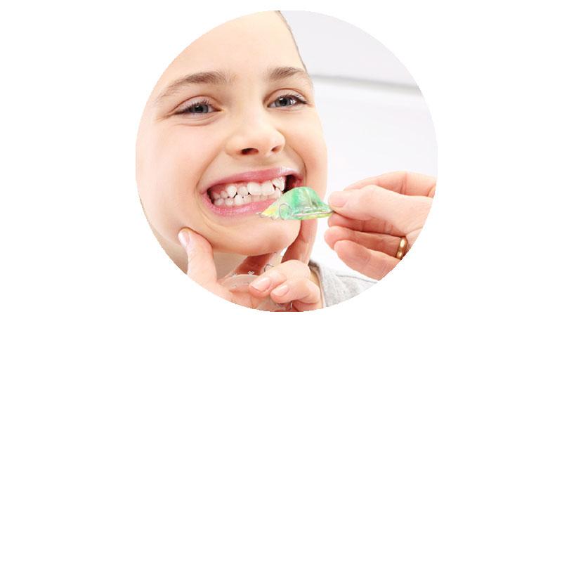 correzione posizione dei denti