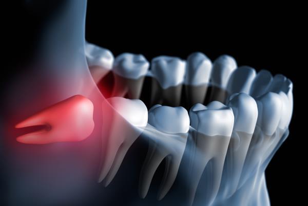 chirurgo orale roma