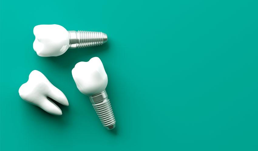 impianti dentali pontoglio