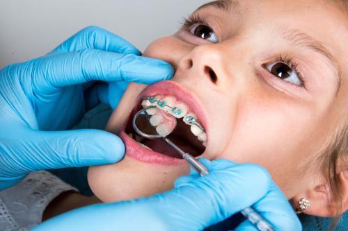Ortodonzia per bambini e adulti gargano studio dentistico trapani