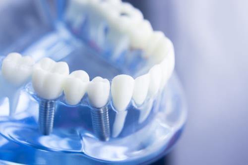 Implantologia dottor gargano dentista trapani