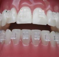 Ortodonzia con attacchi trasparenti
