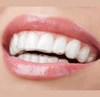 Ortodonzia con sistema Invisalign