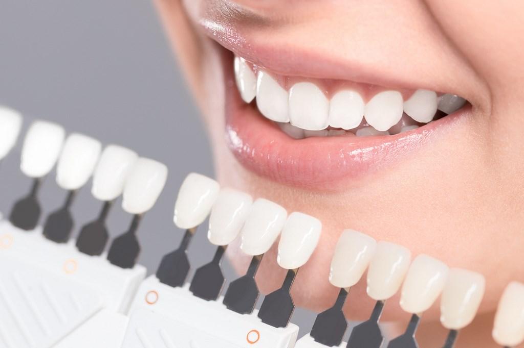 studio dentistico faccette dentali