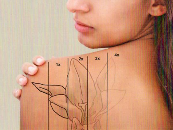 rimozione tatuaggi monza brianza