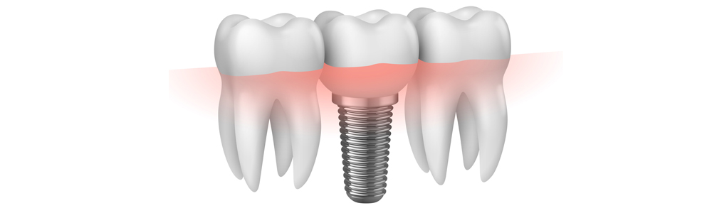 Implantologo protesi Bergamo