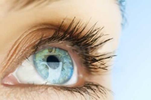 Correzione laser per difetti della vista