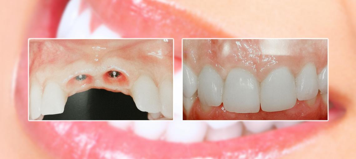 prevenzione studio dentistico squassoni