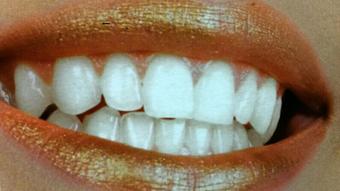 sbiancamento studio dentistico squassoni